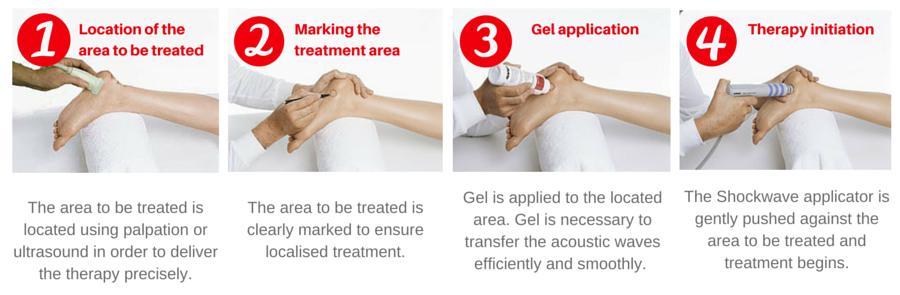 Shockwave treatment process treatment Torbay