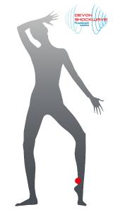 Devon Shockwave Achilles tendinopathy